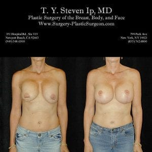 Breast Revision 1a