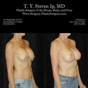 Breast Revision 1b