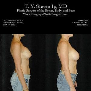 Breast Revision 1c