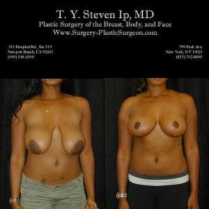 Breast Revision 2a