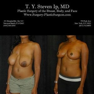 Breast Revision 2b