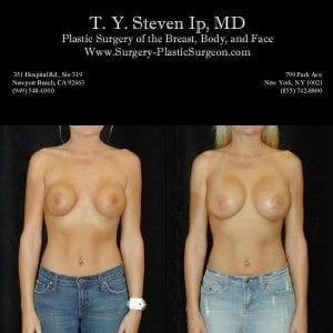 Breast Revision 3a