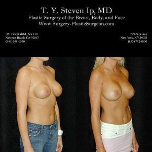 Breast Revision 3b