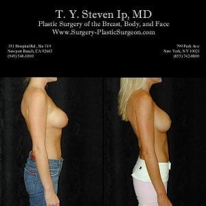 Breast Revision 3c