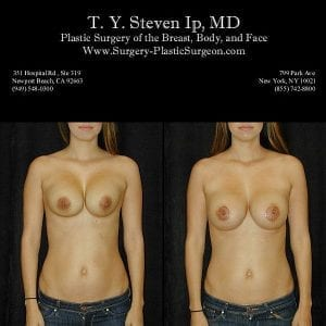 Breast Revision 4a