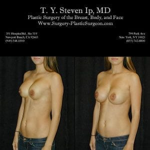 Breast Revision 4b