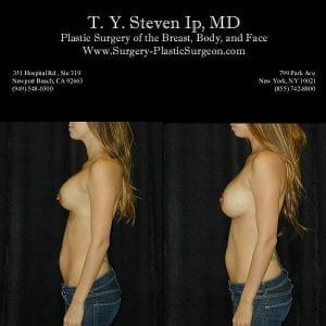 Breast Revision 4c